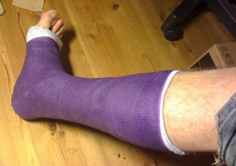 Zlomená noha dokáže pěkně zkazit dovolenou!